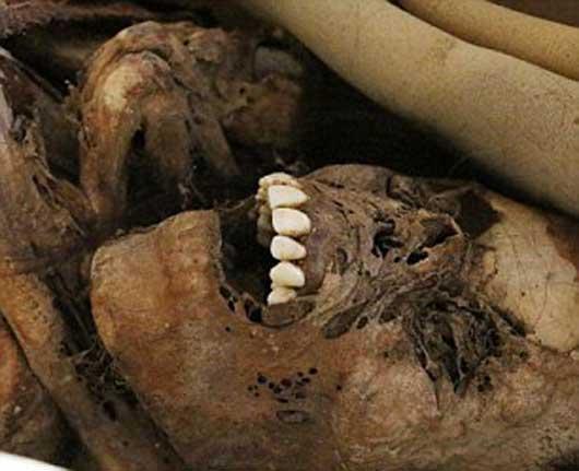 تعاریف مومیایی , علت مومیایی کردن اجساد مردگان در زمان های گذشته